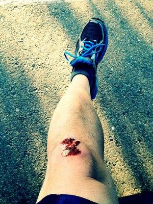 skinned knee